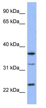 Western blot - SOX21 antibody (ab97836)