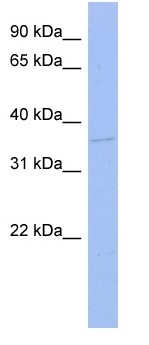 Western blot - TLX3 antibody (ab97837)