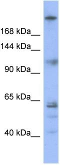 Western blot - Kinetochore antibody (ab97841)