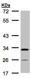 Western blot - C4orf19 antibody (ab97843)