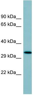 Western blot - Surfactant protein D antibody (ab97849)