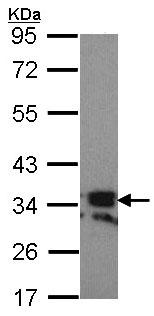 Western blot - RANKL antibody (ab97863)