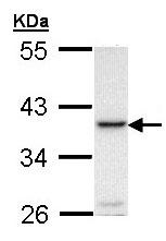 Western blot - RANKL antibody (ab97864)