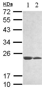 Western blot - C11orf85 antibody (ab97877)