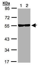 Western blot - TUBB8 antibody (ab97880)
