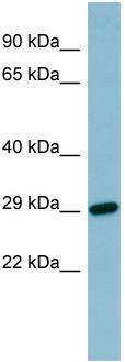 Western blot - RBP4 antibody (ab97883)