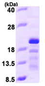 SDS-PAGE - STMN3 protein (ab97900)