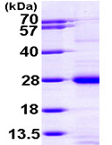 SDS-PAGE - RAP1A protein (ab97904)