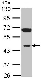 Western blot - INPP1 antibody (ab97912)