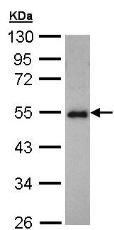 Western blot - CCDC83 antibody (ab97917)