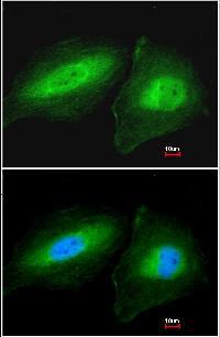 Immunocytochemistry/ Immunofluorescence - CCDC83 antibody (ab97917)