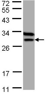 Western blot - ETFB antibody (ab97936)