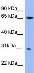 Western blot - NDUFS3 antibody (ab97938)