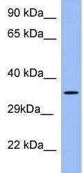 Western blot - PSG5 antibody (ab97940)