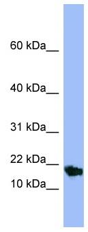 Western blot - SMR3A antibody (ab97942)
