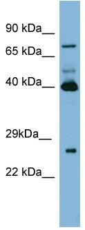 Western blot - Transglutaminase 3 antibody (ab97954)