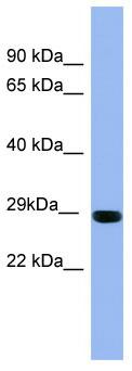 Western blot - Rab1A antibody (ab97956)