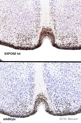 Immunohistochemistry (Formalin/PFA-fixed paraffin-embedded sections) - SOX2 antibody (ab97959)