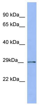 Western blot - Proteasome 20S alpha 5 antibody (ab97978)
