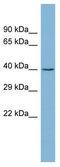 Western blot - ZCCHC12 antibody (ab98001)