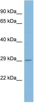 Western blot - Proteasome 26S S10 antibody (ab98002)
