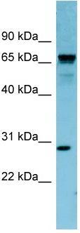 Western blot - RASL12  antibody (ab98006)