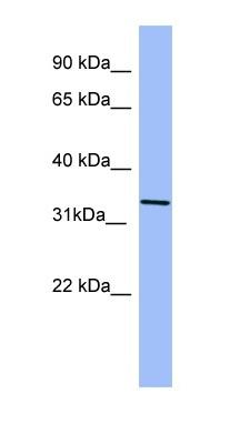 Western blot - KIR2DL4 antibody (ab98012)