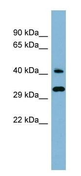 Western blot - RBJ antibody (ab98024)