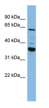 Western blot - CYP3A7 antibody (ab98025)