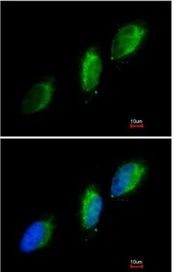 Immunocytochemistry/ Immunofluorescence - JAK2 antibody (ab98031)