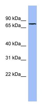 Western blot - Fibulin 1 antibody (ab98032)