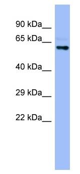 Western blot - Cytochrome P450 4A22 antibody (ab98035)