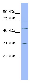 Western blot - DHODH antibody (ab98036)