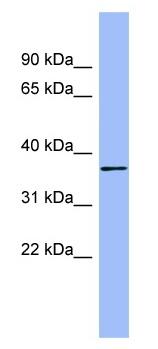 Western blot - HAPLN1 antibody (ab98038)