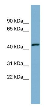 Western blot - EFCAB4B antibody (ab98040)