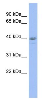 Western blot - HDAC11 antibody (ab98041)