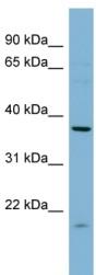 Western blot - FNTA antibody (ab98042)