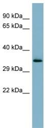 Western blot - MUC15 antibody (ab98045)