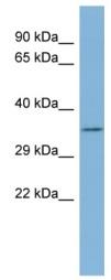 Western blot - TTC35 antibody (ab98046)