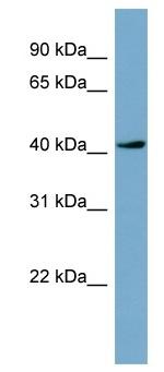 Western blot - TSSK2 antibody (ab98051)