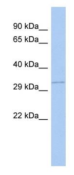 Western blot - GNB1 antibody (ab98052)
