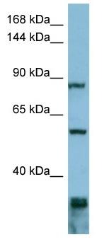 Western blot - EPS8 antibody (ab98053)