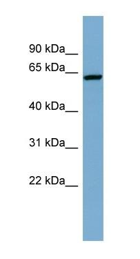 Western blot - DAK antibody (ab98057)