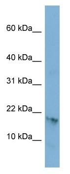 Western blot - C17orf64 antibody (ab98061)