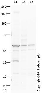 Western blot - Anti-Lumican antibody (ab98067)