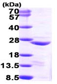 SDS-PAGE - COMMD1/MURR1 protein (ab98077)