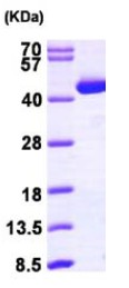 SDS-PAGE - ACAT2 protein (ab98082)