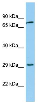 Western blot - Kallikrein 2 antibody (ab98092)