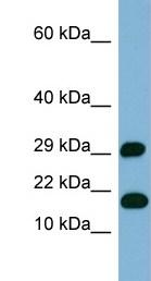 Western blot - TRAPPCL2 antibody (ab98097)