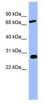 Western blot - COMT antibody (ab98103)